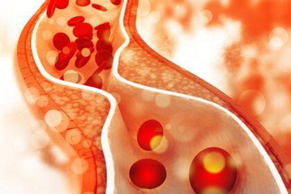 colesterolo alto giovani